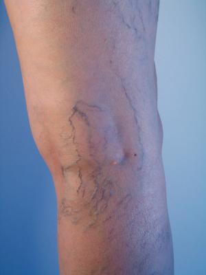 Les signes de la phlébite des veines de la jambe